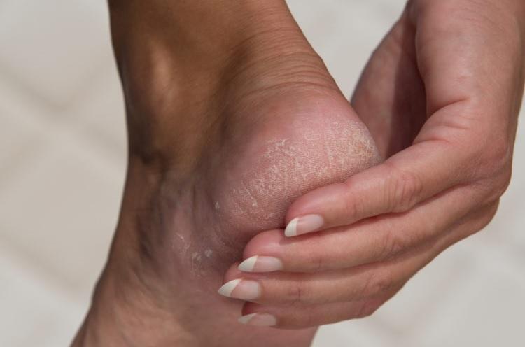 Helps Remove Heel Cracks